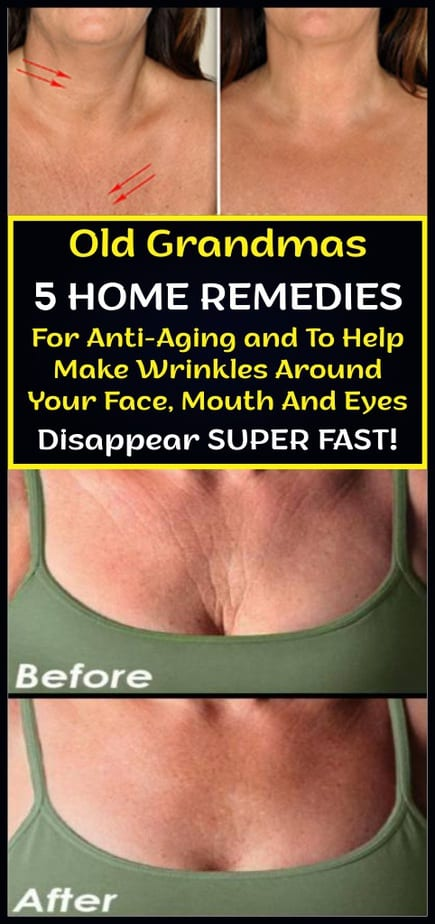 Old Grandmas 5 Home Remedies For Anti-Aging and To Help Make Wrinkles Around Your Face, Mouth And Eyes Disappear Super Fast!