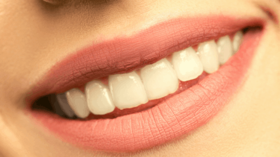 7 Common Tooth Decay Symptoms You Should Know