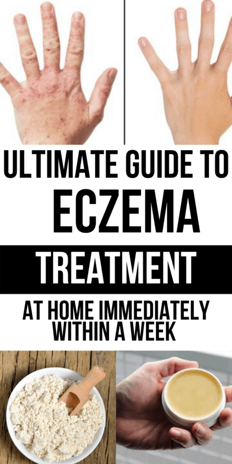 7 Ways to Deal With That Frustrating Hand Eczema For Your Awesome Look