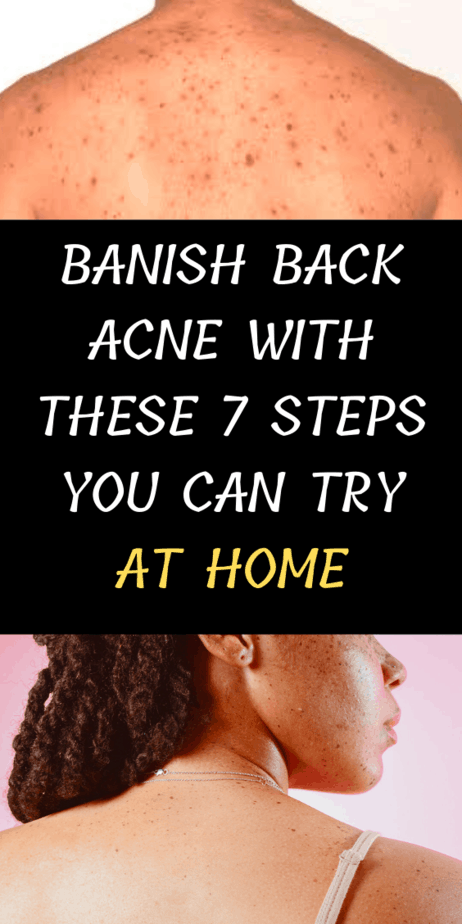 Banish Back Acne With These 7 Steps You Can Try At Home