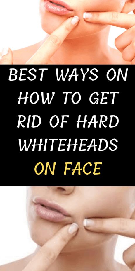 How To Get Rid Of Hard Whiteheads On Face